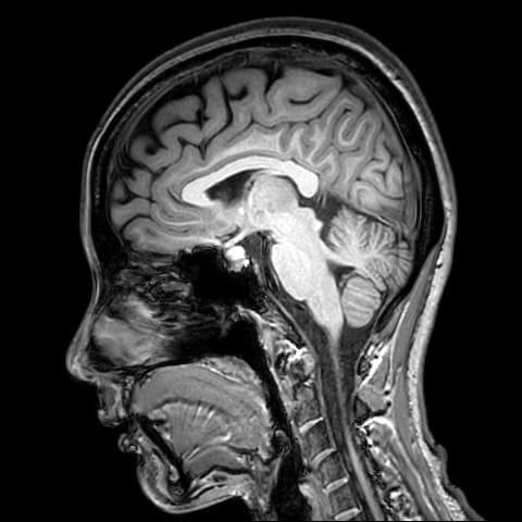 台中腦部影像判讀檢查